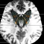 Temelde İnsan: Çağdaş Sanat ve Nörobilim Sergisi