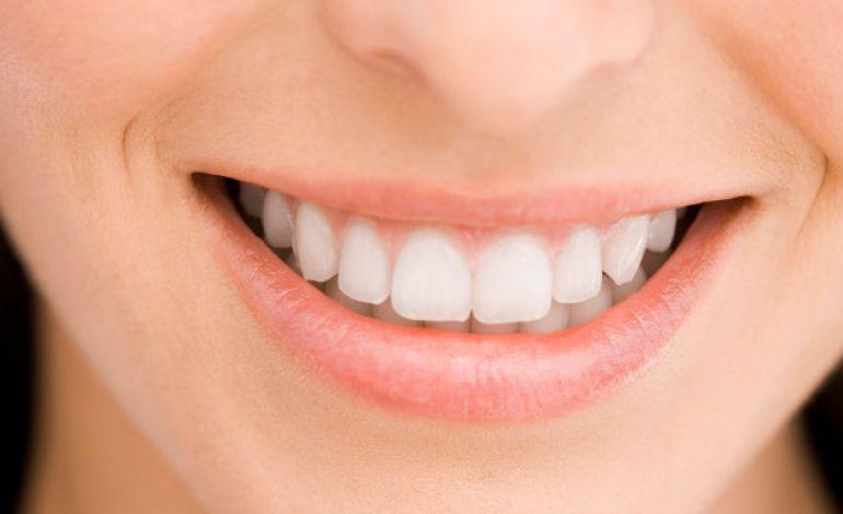 Bir Saatte Işıltılı ve Etkili Bir Gülümsemeye Sahip Olabilirsiniz