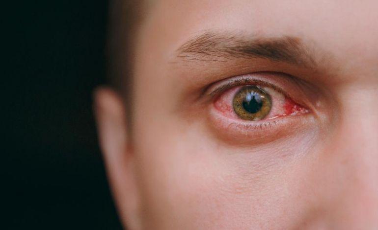 Koronavirüs İlk Olarak Gözlerden Belirti Verebilir!